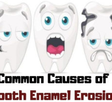 Common Causes of Tooth Enamel Erosion
